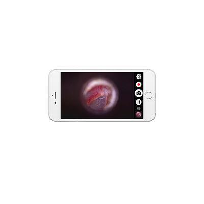 Firefly DE571 Trådlöst videootoskop för App