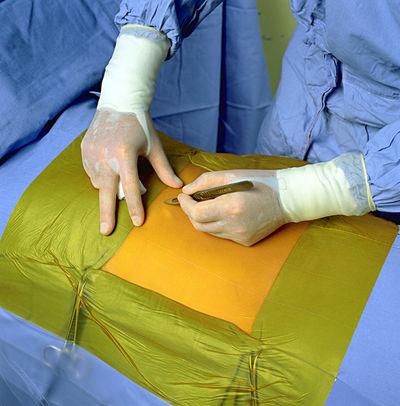 Ioban incisionsduk 34x35 cm /st