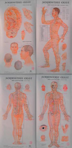 Plansch, akupunktur 4-set.